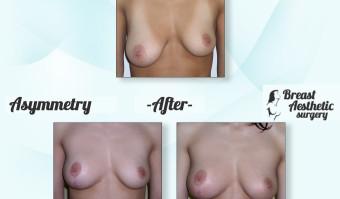 Asymmetry3
