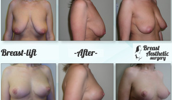 breast liftuj