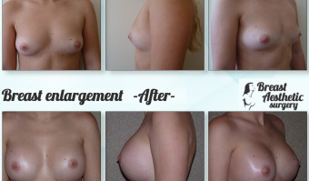breastenlargement1