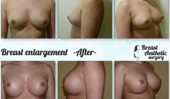 breastenlargement2