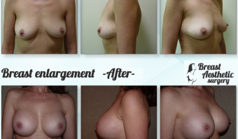 breastenlargement3