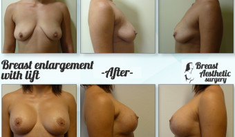 breastenlargement_lift1