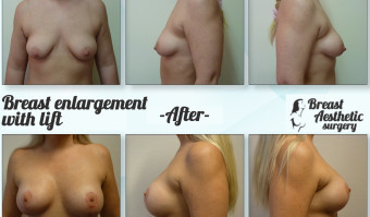 breastenlargement_lift3